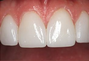 Paradise Before and After Teeth Whitening