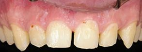 Las Vegas Before and After Dental Crowns